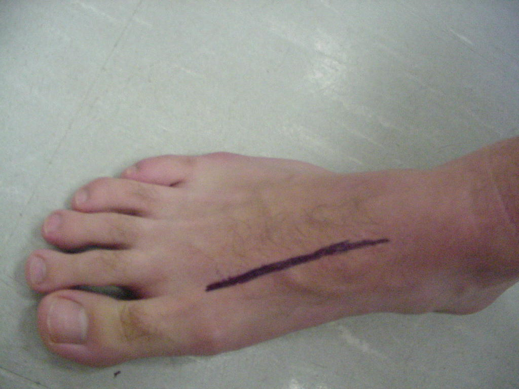 metatarsal shaft Insertion for tibialis anterior muscle and attachment